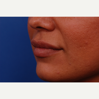 35-44 year old woman treated with Juvederm after 3169021
