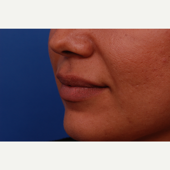 35-44 year old woman treated with Juvederm before 3169021