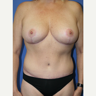 45-54 year old woman treated with Mommy Makeover after 2994009