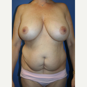 45-54 year old woman treated with Mommy Makeover before 2994009