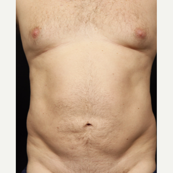 35-44 year old man treated with Smart Lipo before 3542281