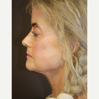 Fractional CO2 laser resurfacing after 3397252