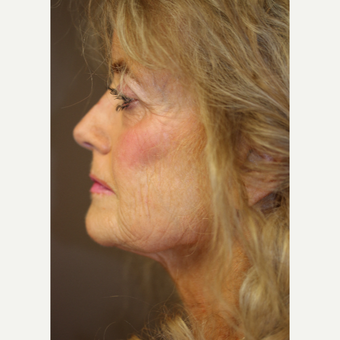 Fractional CO2 laser resurfacing before 3397252