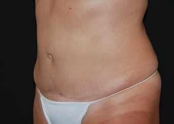 Abdominoplasty 3 after 941129
