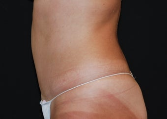 Abdominoplasty 3 941129