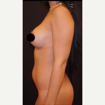 25-34 year old woman treated with Liposculpture before 3624097