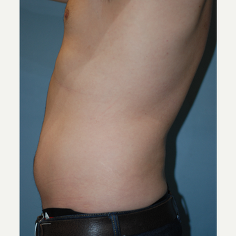 25-34 year old man treated with Liposuction before 3624103