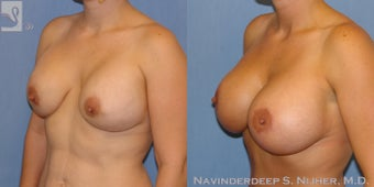 Breast Implant Removal & Replacement with a Mastopexy (Breast Lift)