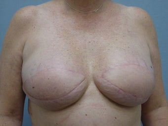 Breast Reconstruction after 98013
