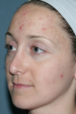 Fraxel Repair for Acne Treatment 1064635