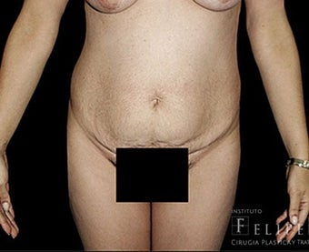 25-34 year old woman treated with Tummy Tuck before 3413402