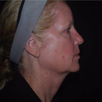 55-64 year old woman treated with Ultherapy before 3500827