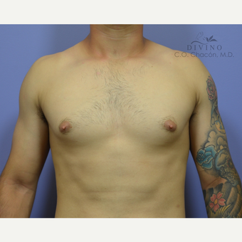 18-24 year old man treated with Nipple Surgery