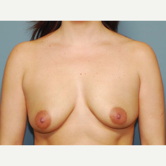 31 y/o Dual Plane Breast Augmentation before 3065919
