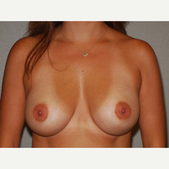 31 y/o Dual Plane Breast Augmentation after 3065919