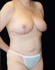 Breast Reduction & Liposuction of Torso after 994669