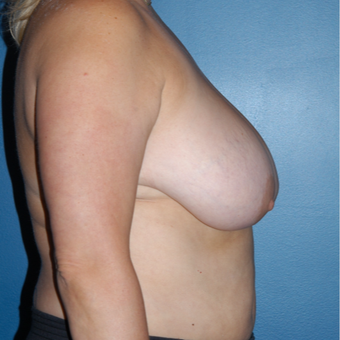 45-54 year old woman treated with Breast Reduction before 3814111