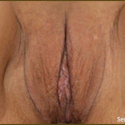 35-44 year old woman treated with Clitoral Hood Reduction after 2155239