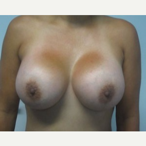 Breast Implant Revision after 3164432