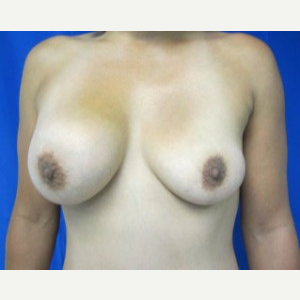Breast Implant Revision before 3164432
