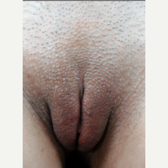 25-34 year old woman treated with Vaginal Rejuvenation after 3146954