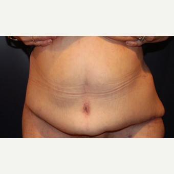 55-64 year old woman treated with Body Lift after 3037318