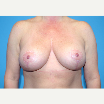 35-44 year old woman treated with Breast Implants after 3440011