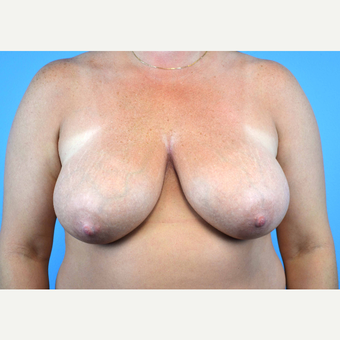 35-44 year old woman treated with Breast Implants before 3440011