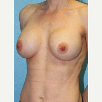 25-34 year old woman treated with Breast Augmentation before 3215208