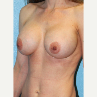 25-34 year old woman treated with Breast Augmentation after 3215208