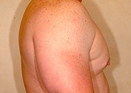 Liposuction for Gynecomastia