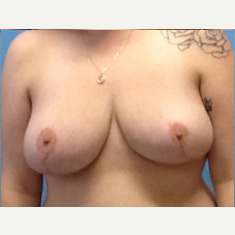 Breast Reduction after 3278928