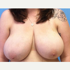 Breast Reduction before 3278928