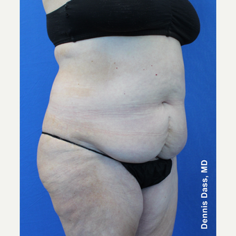 55-64 year old woman treated with Tummy Tuck before 3679915