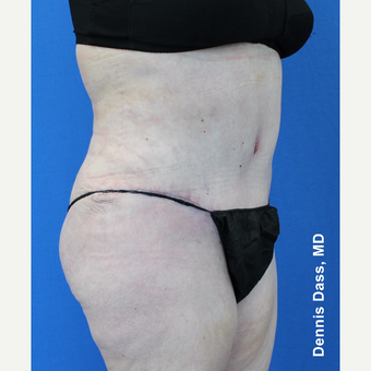 55-64 year old woman treated with Tummy Tuck after 3679915
