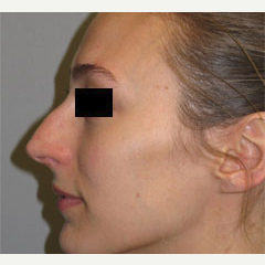 18-24 year old woman treated with Nose Surgery before 3503101