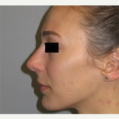 18-24 year old woman treated with Nose Surgery after 3503101