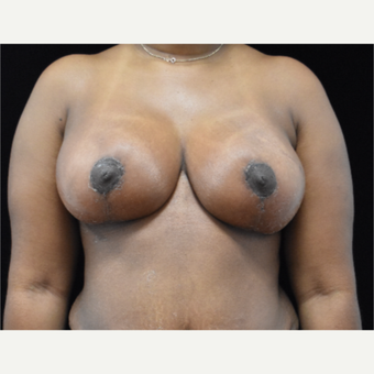 25-34 year old woman treated with Breast Lift after 3097712