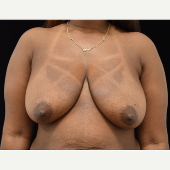 25-34 year old woman treated with Breast Lift before 3097712