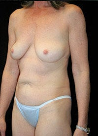 Breast Lift and Periareolar Lift before 400994