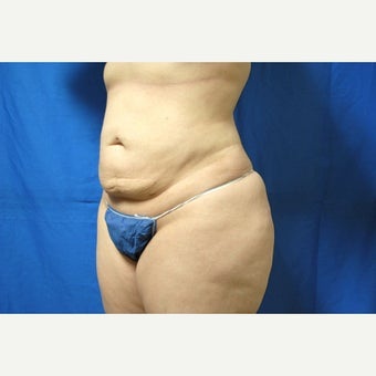 45-54 year old woman treated with Smart Lipo after 2097079