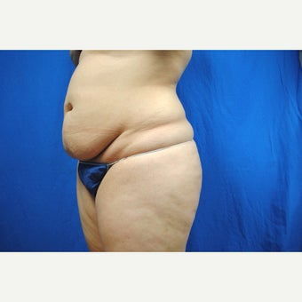 45-54 year old woman treated with Smart Lipo before 2097079