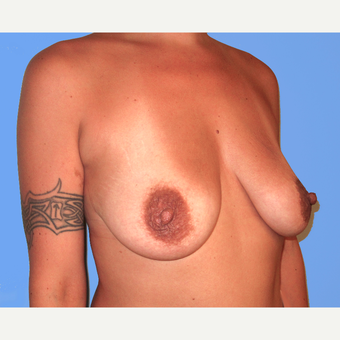 35-44 year old woman treated with Breast Lift with Implants before 3748652