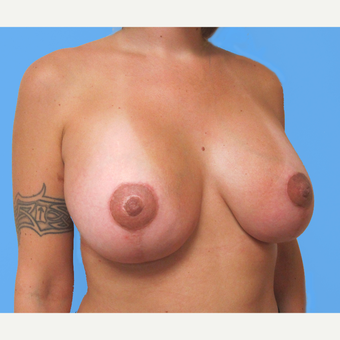 35-44 year old woman treated with Breast Lift with Implants after 3748652