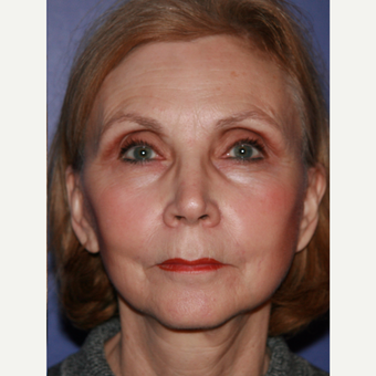 67 year old woman treated with Facelift after 3710703