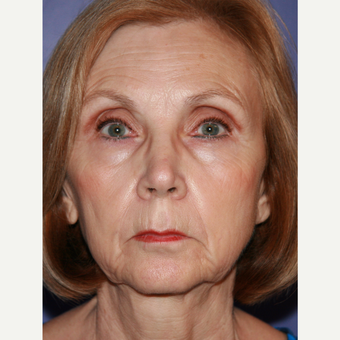 67 year old woman treated with Facelift before 3710703