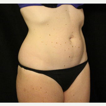 25-34 year old woman treated with truSculpt after 3424081
