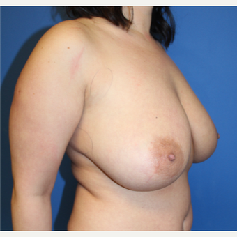25-34 year old woman treated with Breast Reduction before 3765285
