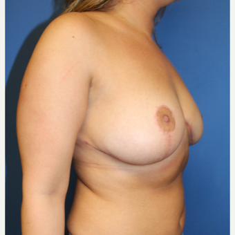25-34 year old woman treated with Breast Reduction after 3765285