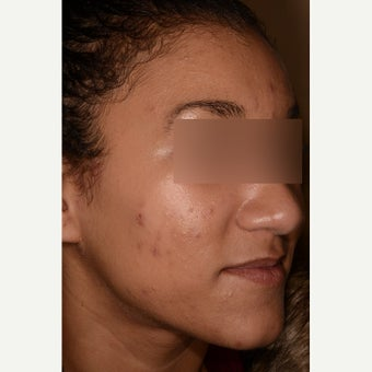 Acne treatment before 1747113